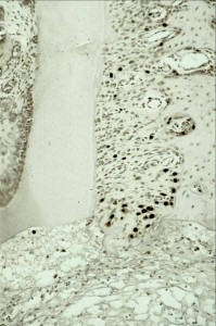 Picture of adult stem cells in the jaw bone