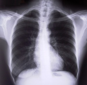 Picture of a chest x-ray
