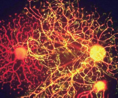 Picture of neuron cells