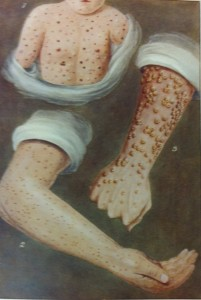 Small pox illustration