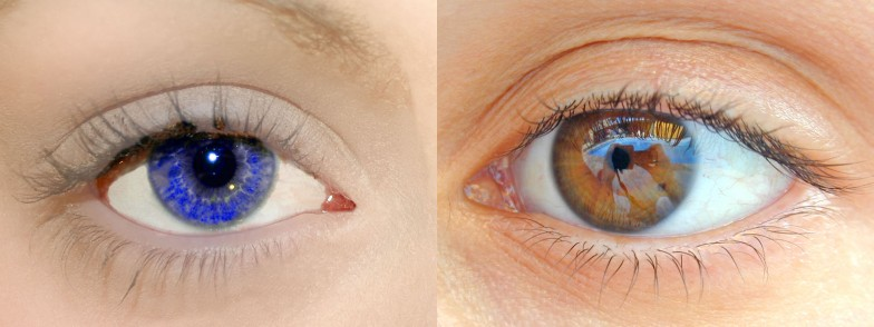 Picture of two eyes, one blue and one brown
