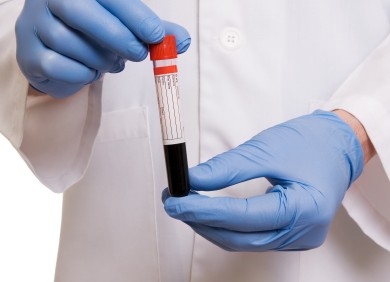Picture of a scientist holding a blood sample