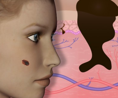 Still image from Investigate a suspect skin growth game
